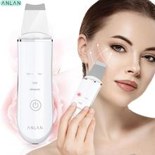 Ultrasonic Ion Skin Scrubber Facial Care Ultrasonic Scrubber Cleaner Blackhead Removal Face Peeling Extractor Skin Beauty Device