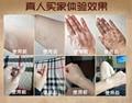 Treatment of skin white mottled vitiligo set