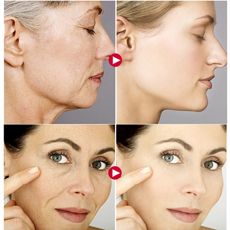 AuQuest 5 Seconds Wrinkle Remover Instant Firmly Anti Aging Moisturizing Remove Fineline Face Cream Beauty Skin Care 20G-3