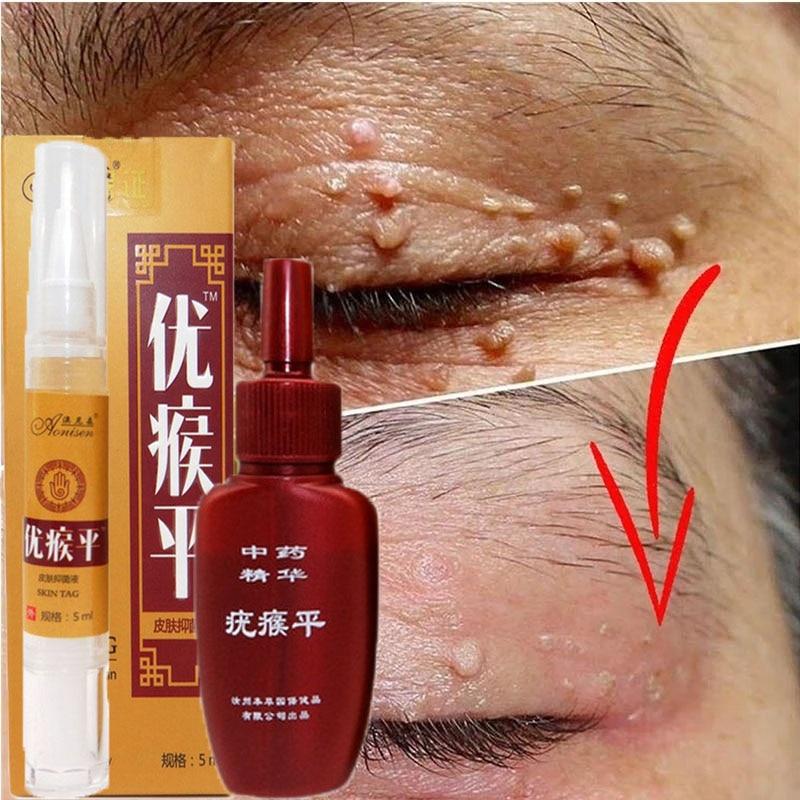 Mole & Genital Wart Remover  1