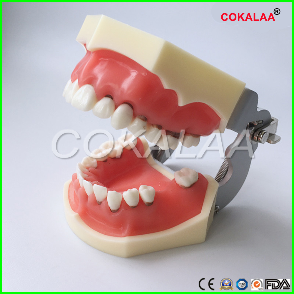 Modèle de maladie parodontale dentaire/modèle médical dentaire modèle d'apprentissage de dentiste