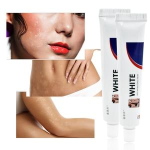 Chinese Medical White Spot Disease Cream Pigment Melanin Promoting Liniment Skin Vitiligo Leukoplakia Disease Treatment 30g
