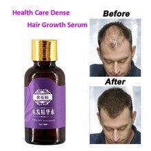 20ml szybki wzrost włosów szybciej rosną odrastanie włosów dla mężczyzn kobiety czyste naturalne włosy utrata produktów Pilatory leczenie przeciw wypadaniu włosów
