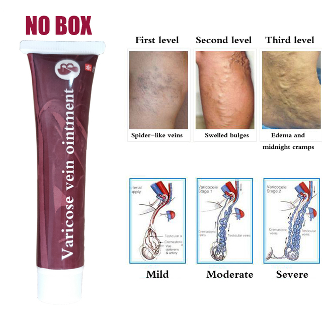 100% Varicose Veins Treatment Cream Ointment Vasculitis Phlebitis Spider Pain Varicosity Angiitis Remedy Removal Herbal Cream