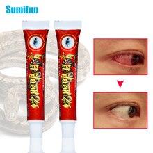 Chinese Medical Eyes Cream Eliminates Eye Fatigue swelling Overuse Eyes Hurt Eyes Herbs Moisturize Eyes Care