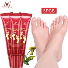 3PCS Herbal Foot Treatment Anti Fungal Infection Onychomycosis Paronychia Toe Fungus Treatment Removal Dead Skin Feet Care