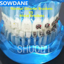 Blue Transparent Dental Orthodontic Model with Ceramic and Metal Brackets for Patient Communication ( Left Right)