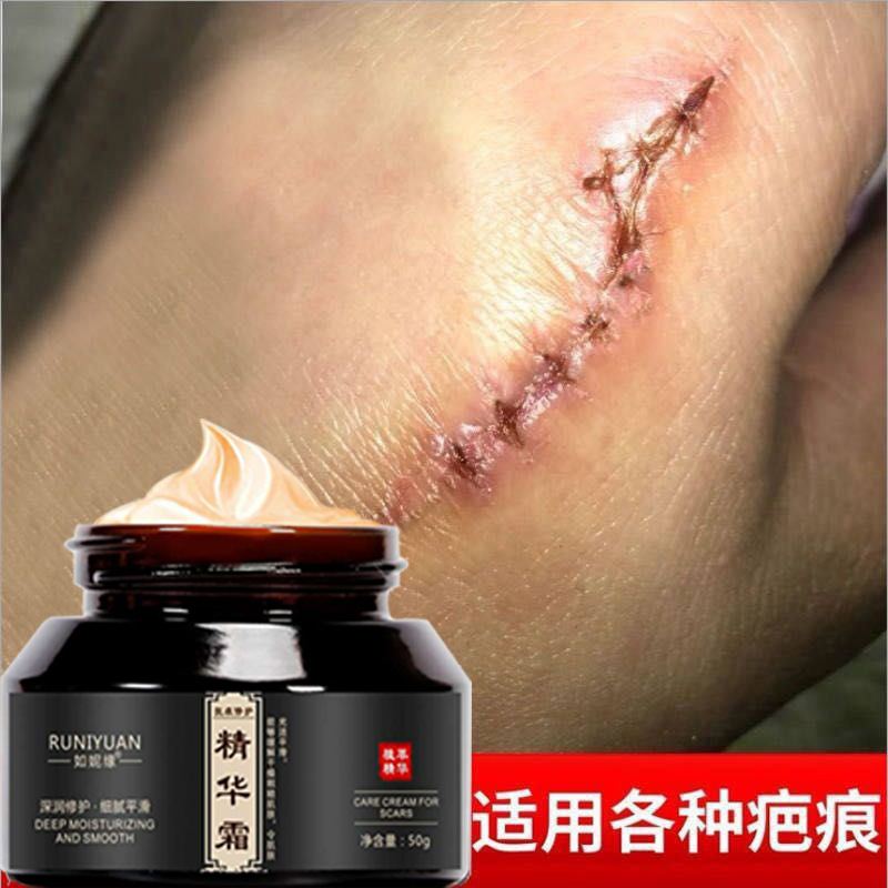 WATIANMPH Acne Scar Removal Cream Skin Repair Face Cream Acne Spots Acne Treatment Blackhead Whitening Cream Stretch Marks