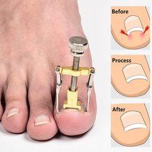 Инструмент для педикюра и коррекции вросших ногтей Лечение медицинский