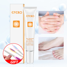 Fungal Nail Treatment Feet Care Essence Whitening Toe Fungus Removal Gel Anti Infection Onychomycosis Nails Repair