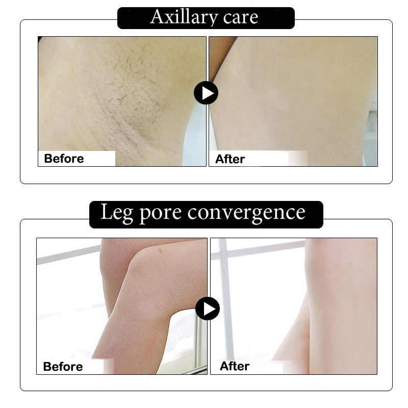 3 أيام تأثير الإبط تبييض كريمات الجسم بين الساقين الركبتين أجزاء خاصة تبييض صيغة الإبط مبيض العناية بالجسم الحميمة