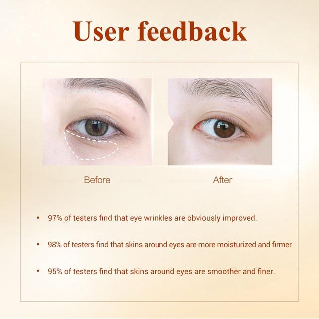 LANBENA Eye Mask Gel Retinol Gold Collagen Eye Patch Reduce Dark Circles Puffy Eyes Fine Lines Anti Aging Moisturizing Eyes Care 2