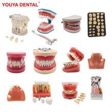 2021 Various Dental Model Teeth Teaching Model Study Removable Orthodontic Implant Tooth Models Resin Dentistry Dentist Material