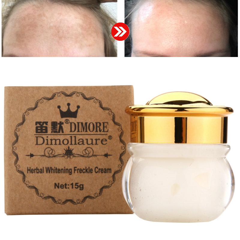Dimollaure Strong Removal Melasma Whitening Cream Freckle Speckle Sunburn Spots Pigment Melanin Scar Removal Face Cream Dimore