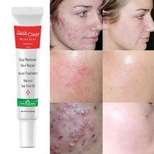 Acne Treatment Face Cream Scar Blackhead Remover Repair Shrink Oil Whitening Skin Pores Cosmetics Gel Control Care V9O3
