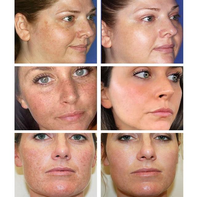 BREYLEE Vitamin C 20% VC Whitening Facial Cream Repair Fade Freckles Remove Dark Spots Melanin Remover Brightening Face Cream 2