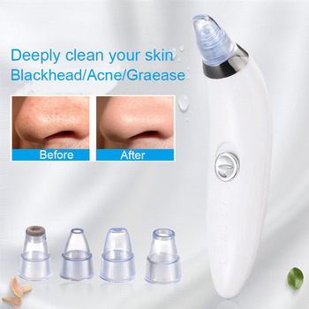Vacuum Suction Blackhead Remover Nose Facial Pore Cleaner Spot Acne Black Head Pimple Removal Beauty Face Skin Care beauty Tool vacuum pore cleaner face acne blackhead removal spot cleansing skin home spa peeling exfoliating comedo suction beauty tool