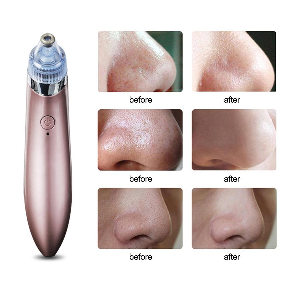 Pore Cleaner Deep Cleansing Dead Skin Blackhead Remover Face Massager Skin Care Waterproof Beauty Tools Suitable All Skin Types