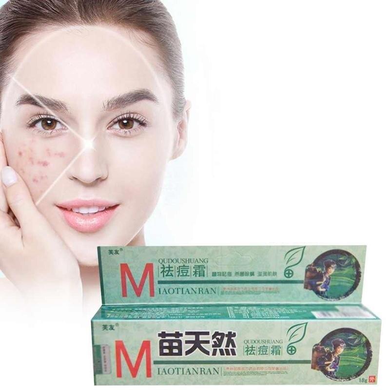 1Pcs Original Fuyou Miaotianran Remove Acne Cream Germicidal Remove Mite And Moisturize Your Skin ZBY4412
