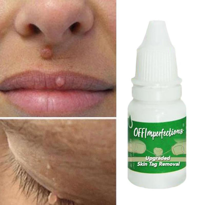 Skin-Tag-Removal Warts-Treatment Ointment-Body Plantar 10ml title=