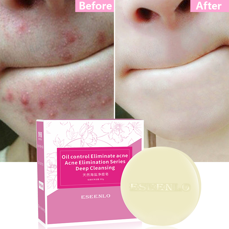 ESEENLO Sea Salt Soap Remove Pimple Pores Acne Treatment Cleaner Moisturizing Shea Butter Face Wash Soap Base Skin Care 80g 1