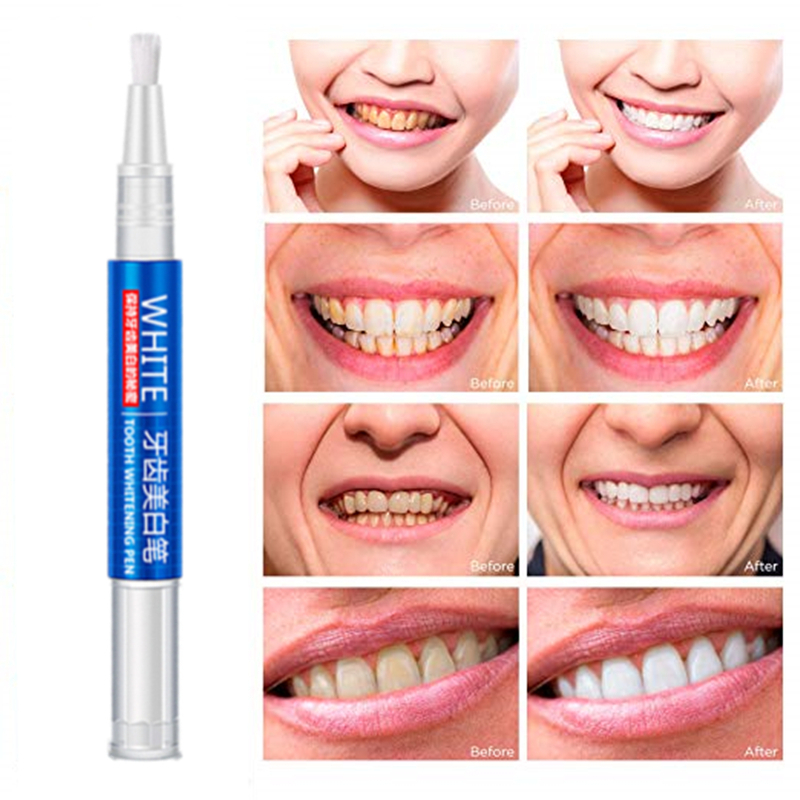 1Pcs Peroxide Gel White Teeth Whitening Pen Tooth Gel Whitener Bleach Remove Stains Oral Hygiene Tooth Cleaning DROP SHIPPING