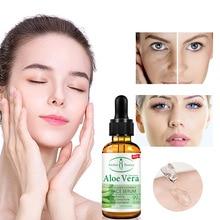 Aichun Aloe Facial Essence Moisturizing and Tightening to Desalinate Acne Facial Hyaluronic Acid