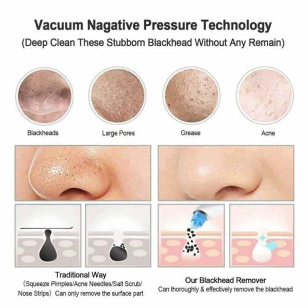 Usuwająca zaskórniki pielęgnacja skóry porów odkurzanie trądzik usuwanie pryszcz zasysanie próżniowe narzędzie twarzy urządzenie do dermabrazji diamentowej twarzy czyste
