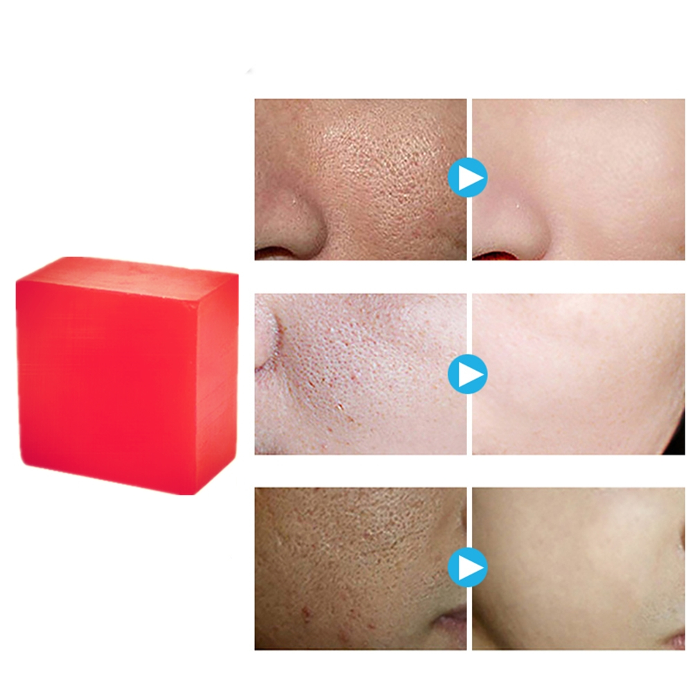 100g Handmade Removal Pimple Pore Acne Treatment Rose Soap Moisturizing Pomegranate Flower Soap Face Care Wash Basis Soap 1Pcs