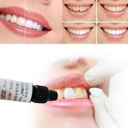 1pc Dental Comfort Bond Tooth Veneer Quick Adhesive Desensitizer Equivalent formula Teeth Whitening Products