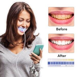 Image 2 - Teeth Whitening Kit Blue Light Dental Whitening Gel 16 LEDs  Whiter Teeth Tooth Whitening Pens Dropship Teeth Bleaching System