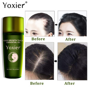 Image 2 - Yoxierハーブ髪の成長エッセンシャルオイルシャンプーヘアケアスタイリング損失製品の厚さの高速修理成長処理液