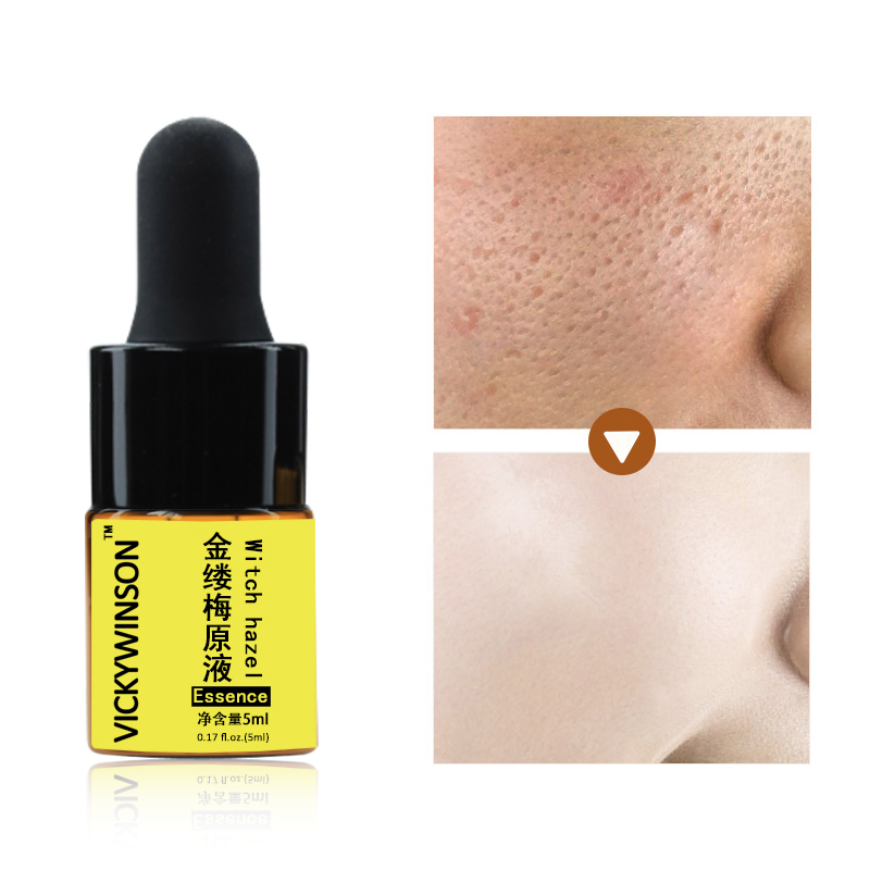 Witch Hazel Pore Shrinking Essence Effectively Cleans Pores Exfoliating To Replenish Skin Moisture Shrink Pores 5ml