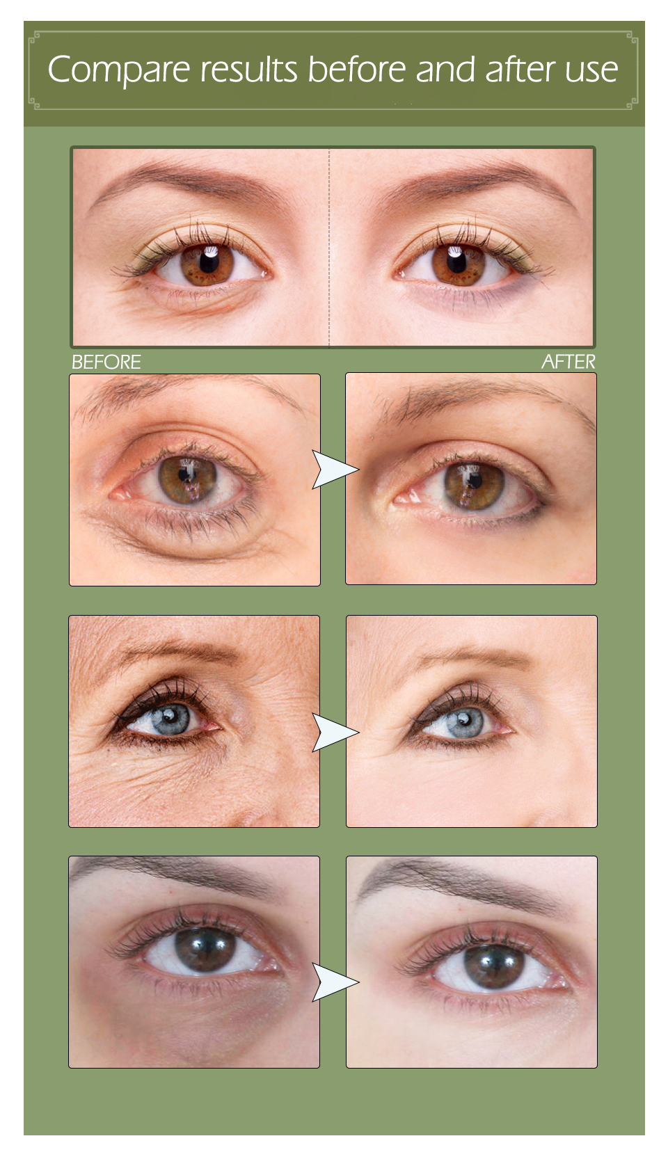 Eyes Stop118 60pc gel 5