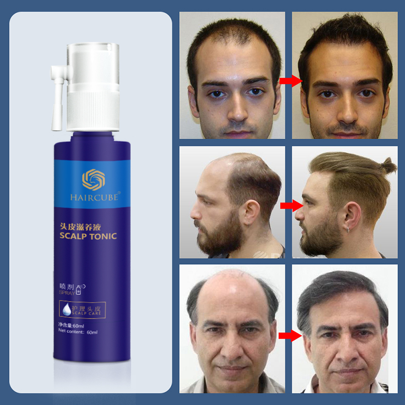 oleo da essencia do crescimento do cabelo anti tratamento da perda de cabelo para o reparo