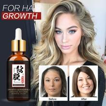Уход За Волосами Эфирные масла для роста волос эссенция для роста волос Жидкая жидкость для предотвращения выпадения волос уход за здоровьем Красота Сыворотка для роста густых волос
