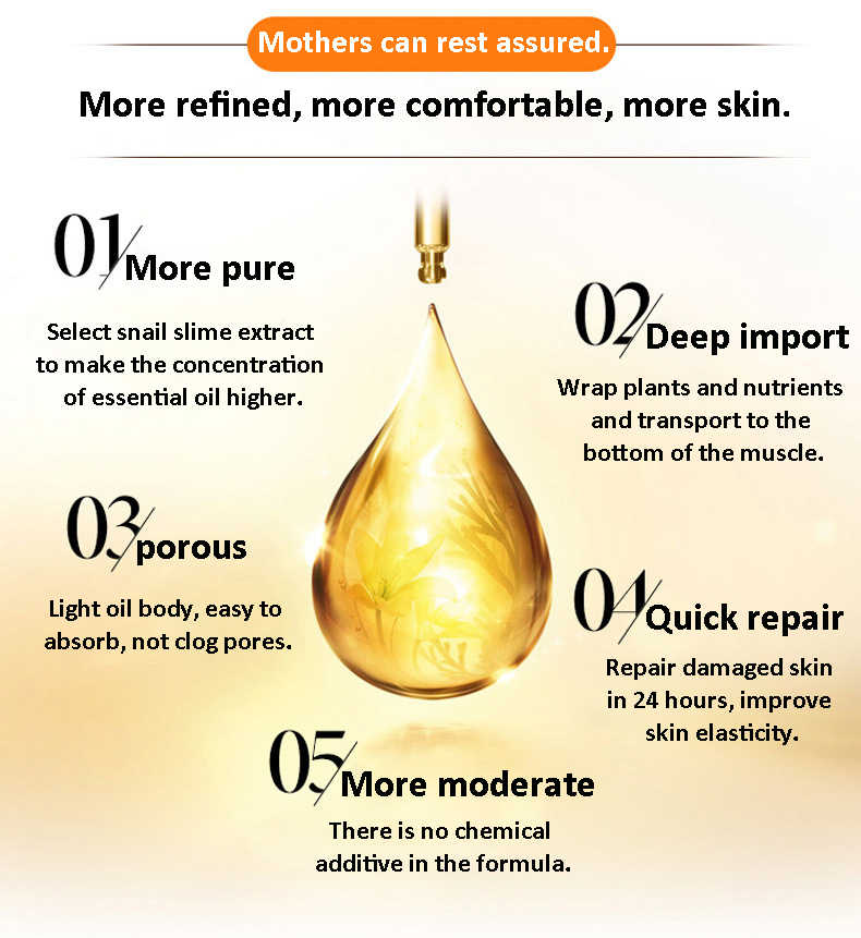 Stretch Marks Remover Essential Oil Skin Care ครีมสำหรับ Stretch Mark Removal คลอดบุตร Slackline สำหรับตั้งครรภ์น้ำมัน
