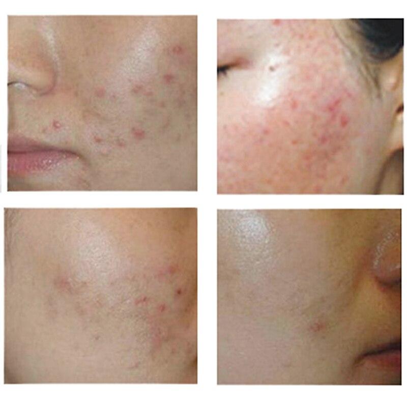 New Hot Bioaqua 30g Anti Acne Cream Oil Control Shrink Pore Acnes Scar Remove Face Care SMR88 3