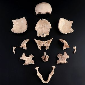 Image 5 - 15pcs/set 4D Disassembled Color Skull Anatomical Model Detachable Medical Teaching Tool