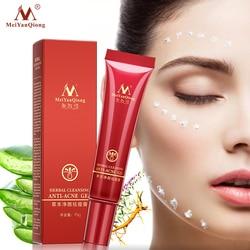 Alta Qualidade chá de Ervas de Limpeza Facial Anti acne creme de tratamento da remoção da cicatriz da pele oleosa Acne Manchas rosto cuidados com a pele À Base de Plantas