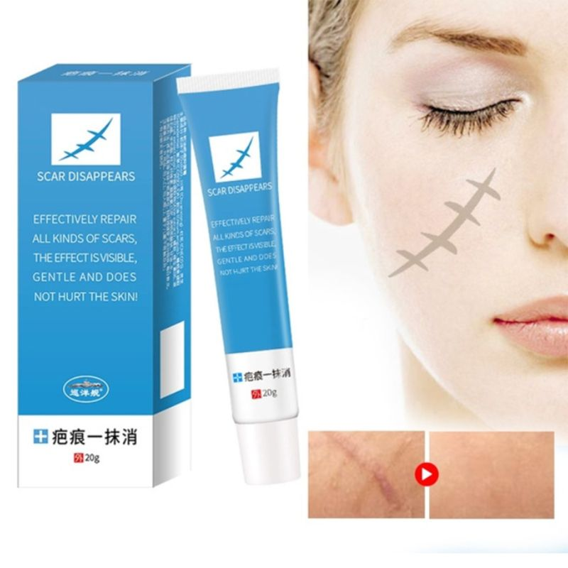 20g Natural Herbal Scar Stretch Marks Removal Cream Acne Spot Stain Treatment Skin Repair Antibacterial Gel Relieve Itching Oint