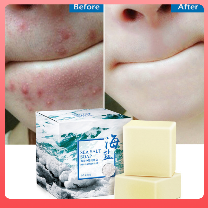 100g Sea Salt Soap Removal Pimple Pore Acne Treatment Sea Salt Soap Moisturizing Goat Milk Soap Base Skin Care Soap TSLM1