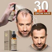 Novo 30ml purc natural crescimento do cabelo gengibre extrato perda raiz rebrota crescimento do cabelo spray extrato para homens evitar a perda de cabelo tslm1