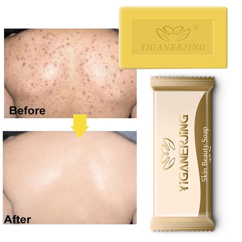 5PC Yiganerjing Sulfur Soap Trial Pack Skin Antibacterial Treatment Acne Psoriasis Seborrhea Eczema Anti Fungus Bath Beauty Soap