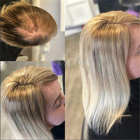 BYMC 7*10cm ombre blonde Hair Toupee Woman Top Piece European Remy Hair One Piece Hair Topper Mono Clip Wig for Less hair Women