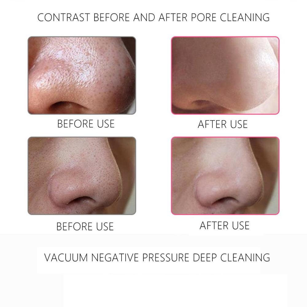 Portable USB Electric Face Vacuum Suction Pore Cleaner Blackhead Remover Spot Acne Removal Facial Cleaning Tool in Face Skin Care Tools from Beauty Health