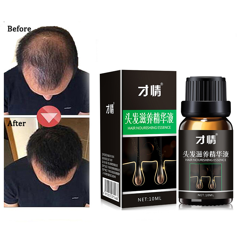 Продукты для роста волос натуральные без побочных эффектов продукт расти быстрее для ухода за волосами, восстановление роста Pilatory продукты...