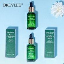 Breylee anti acne espinha rosto soro acne tratamento máscara cicatriz removedor hidratante clareamento cuidados com a pele essência facial creme 17ml