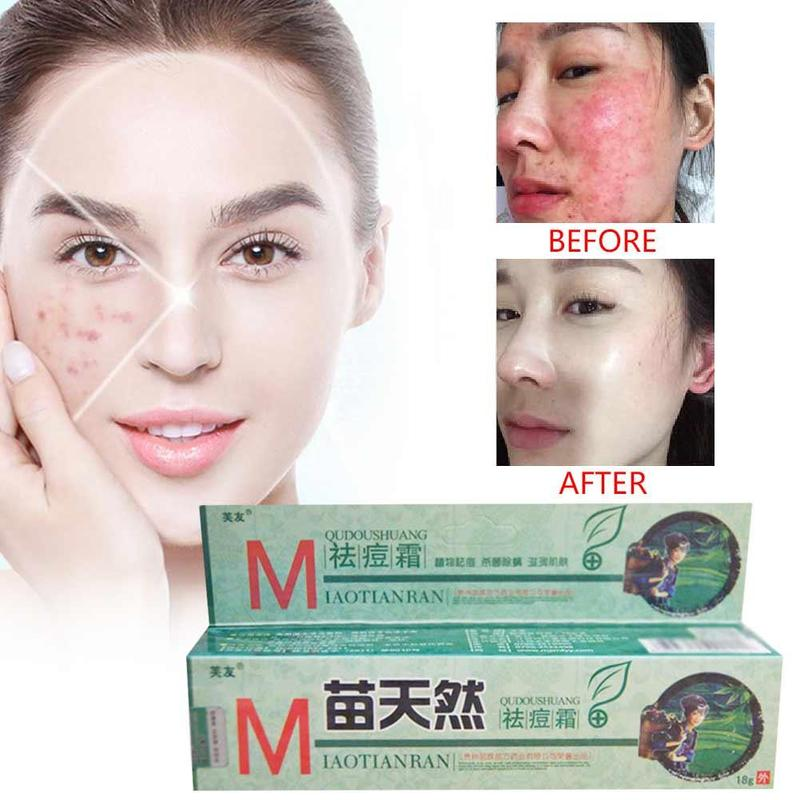 1pcs Original Fuyou Miaotianran Remove Acne Cream Germicidal Remove Mite And Moisturize Skin Massage Creams For Facial Treatment