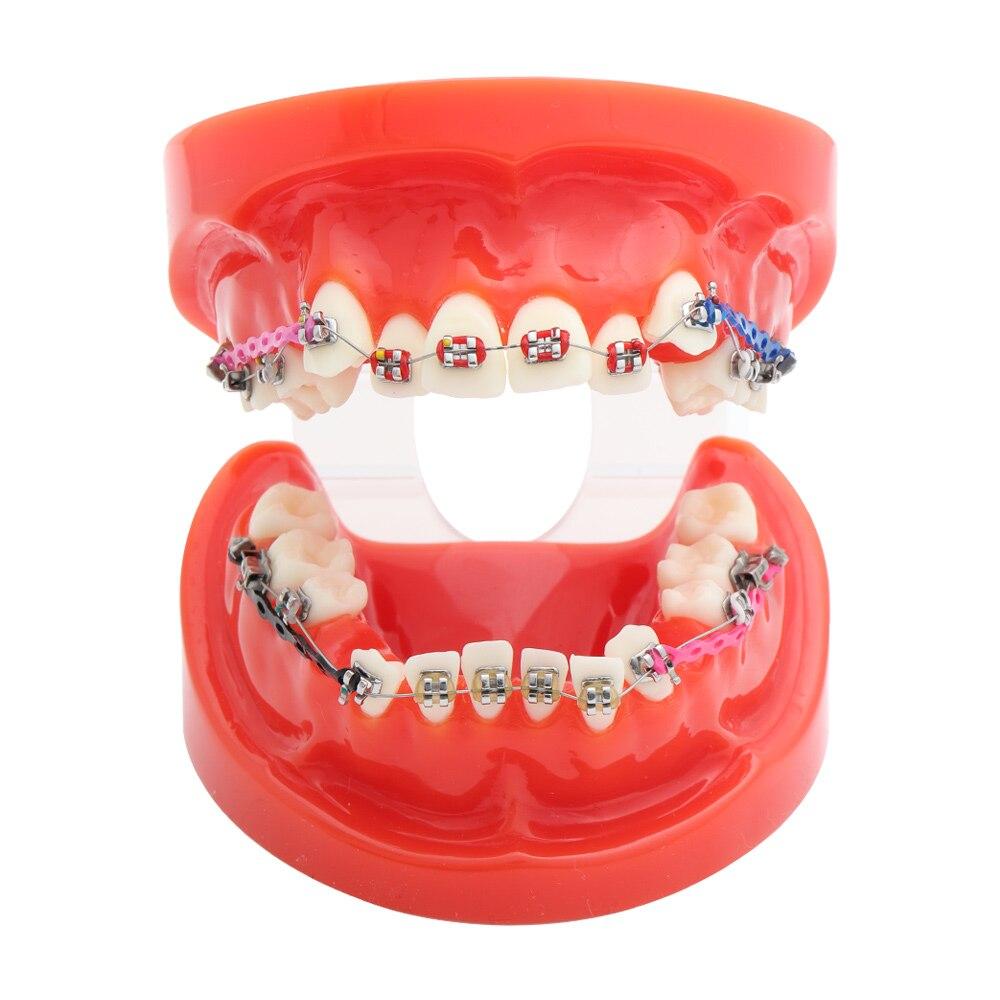 dentes ortodonticos padrao dental modelo com suportes 04